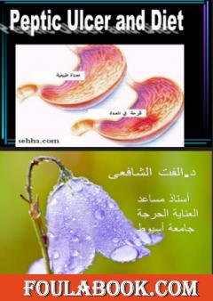 قرحة المعدة والتغذية